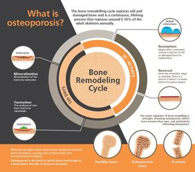 sis: Making bone health supplements palatable